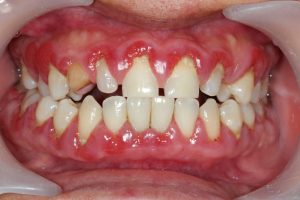 Did you know that your dentist can save your teeth and gums with periodontal treatments?