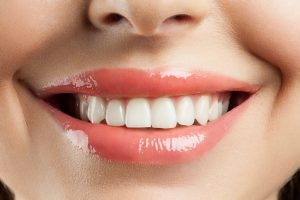 Your dentist in Fort Smith answers your questions about porcelain veneers.
