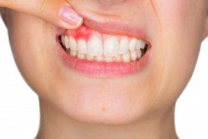 woman pink spot on gums