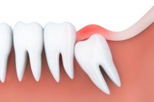 a wisdom tooth under the gum line
